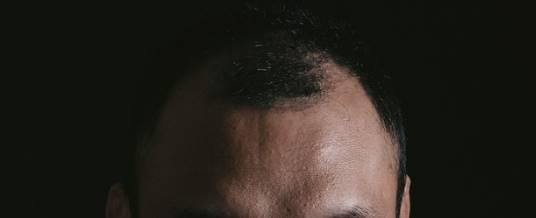 頭髪が薄い人の頭